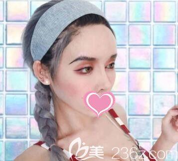 上海丽质医疗美容门诊部卢九宁术后照片1