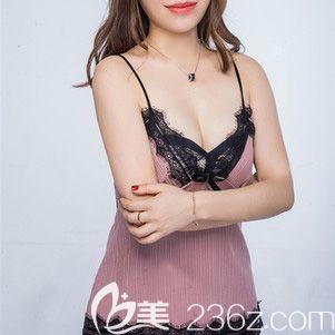 哈尔滨雅美假体隆胸术后两个月