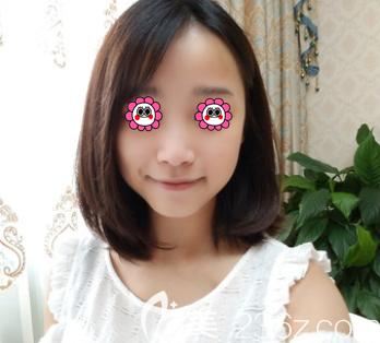 北京艺美医疗美容诊所范宪红术前照片1