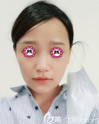 范宪红医生给我注射海薇玻尿酸丰唇第3天样子