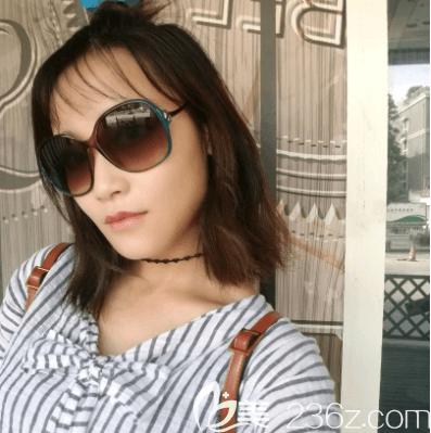 我在北京艺美注射海薇玻尿酸丰唇第7天效果