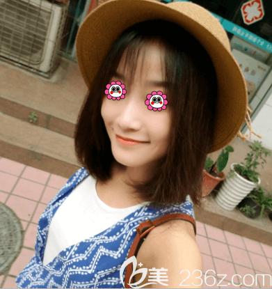 北京艺美范宪红海薇玻尿酸丰唇案例