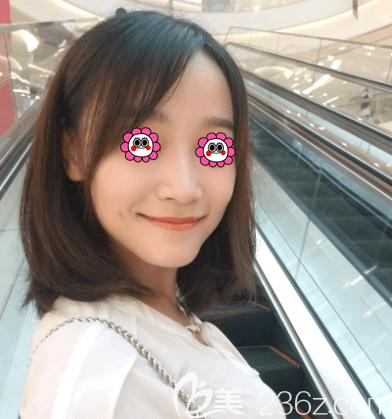 北京艺美医疗美容诊所范宪红术后照片1