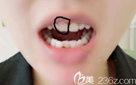 上海恒愿口腔郑奎院长给我做的即刻种植牙全过程仅用2小时,而且当天就可以吃东西哦