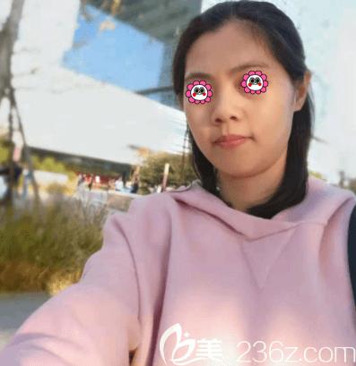 北京光子嫩肤哪家医院好?我在北京煤医整形做bbl光子嫩肤效果分享