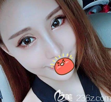 海宁时光朱若宁擅长眼鼻综合整形,这是我找她把双眼皮和耳软骨鼻综合隆鼻一起做的效果