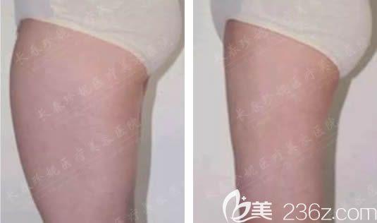 长春珍妮整形美容医院郑乃诚术前照片1