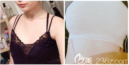 深圳富华医疗美容整形医院胡俊杰术前照片1