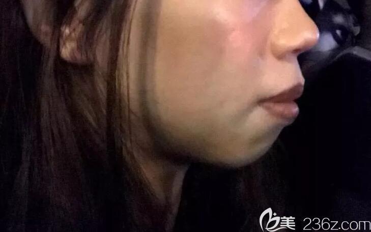 上海雅悦口腔门诊部术前照片1