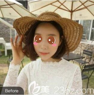 上海明桥整形美容门诊部王俊伶术前照片1