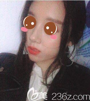 上海明桥整形美容王俊伶玻尿酸隆鼻真人案例术后29天
