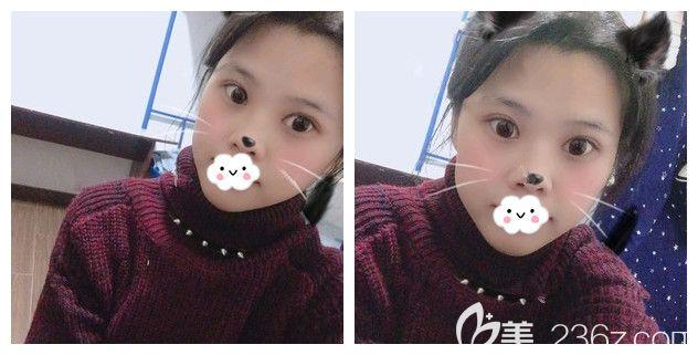 南京亚韩整形美容医院贝怀年术后照片1