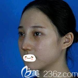 张柏松医生为我做自体软骨隆鼻术后即刻效果
