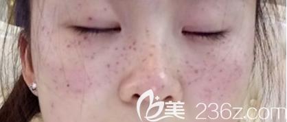 济南激光祛斑术后即刻照片