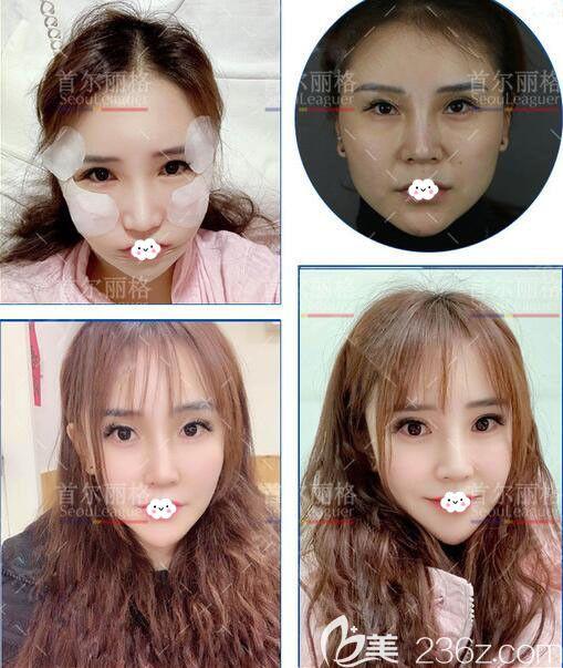 上海首尔丽格面部轮廓整形案例了解医院磨骨怎么样?