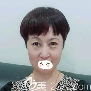 赵彦光医生为我做埋线提升术后2天面部微肿