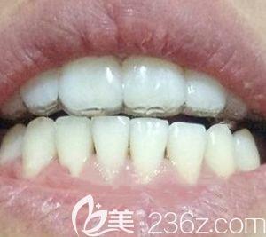 找太原众牙口腔卢鹏做了牙齿正畸,今天来分享我戴金属牙套矫正虎牙外凸的经历