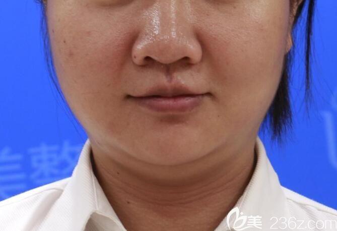 本来准备去合肥华美整形打瘦脸针的,面诊后朱德纲给我做了面部吸脂瘦脸,1个月感觉脸小了一圈