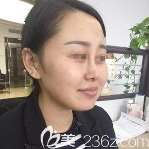 石家庄天伊美医疗美容医院赵彦光术前照片1