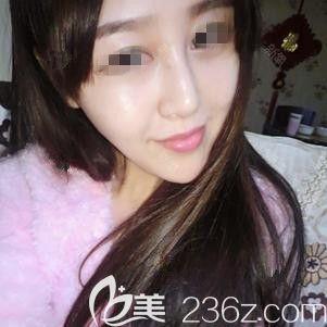 石家庄天伊美医疗美容医院赵彦光术后照片1