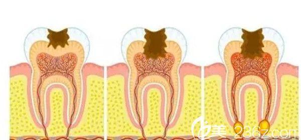 引发牙髓炎症的主要原因