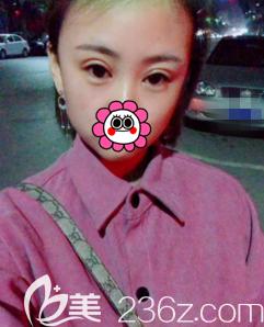 我在北京世熙做埋线双眼皮第28天效果