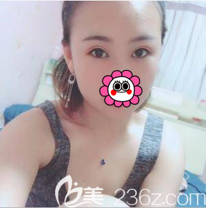 北京世熙埋线双眼皮案例