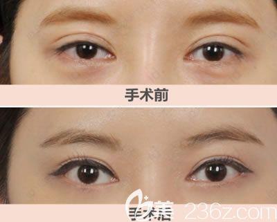 做双眼皮失败修复成功案例