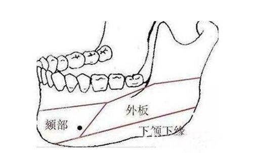 韩国面部轮廓四件套手术
