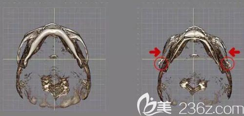 韩国面部轮廓三件套改善部位