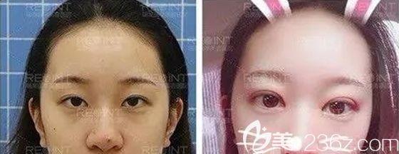 长春瑞澳整形张建亮医生修复失败双眼皮案例效果