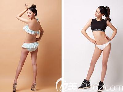 在韩国原辰面诊完后就在这做了全身吸脂手术 6个月告别了我的水桶腰和大粗腿