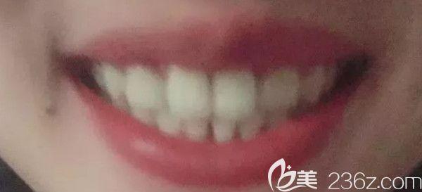 在西安中诺口腔用2年的时间完成了牙齿矫正,期间做了瓷贴面,公布正畸前后变化图