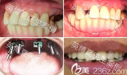 上海英博口腔半口牙种植案例效果图