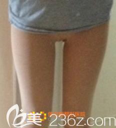 韩国体引脂整形医院张斗烈术后照片1