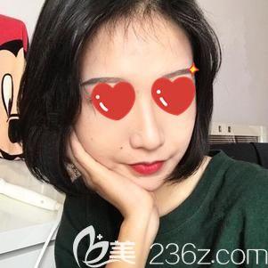 天津美联致美医学美容医院麻豫航术后照片1
