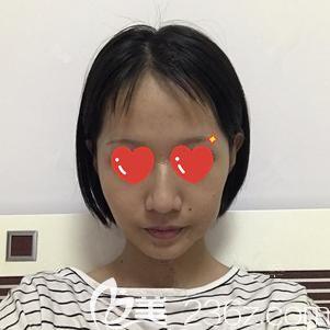 天津美联致美医学美容医院麻豫航术前照片1