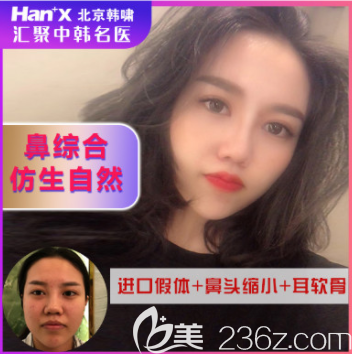 北京韩啸医疗美容金世贤医生鼻综合案例