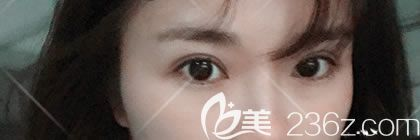 周其光医生在绍兴金柯桥医院坐诊了,看我找周其光割双眼皮后恢复的怎么样,效果好吗