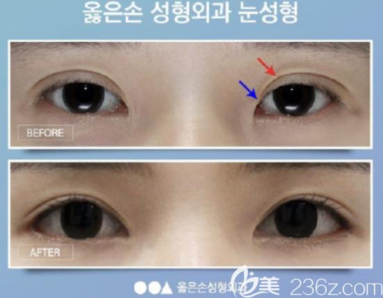 韩国righthand整形金英民做眼睛怎么样