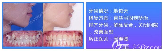 南宁柏乐口腔牙齿矫正案例