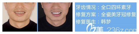 南宁柏乐口腔牙齿美白案例