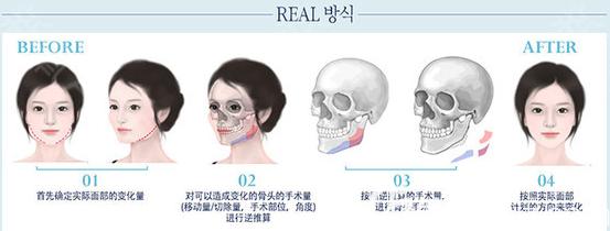 韩国faceline医院下颌角手术过程示意图