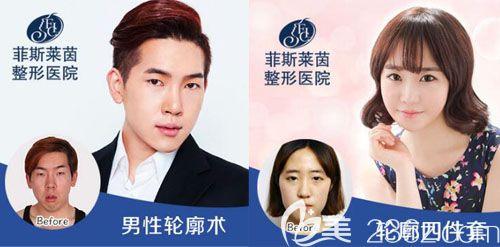 韩国faceline医院李真秀面部轮廓整形真人案例效果对比图
