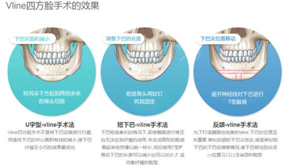 韩国ID整形医院磨骨去下颌角示意图