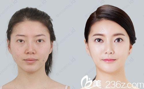 韩国ID整形医院MVT下颌角手术案例效果前后对经比图