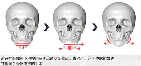韩国原辰磨骨去下颌角手术示意图