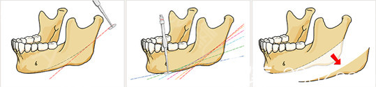 韩国拉菲安整形医院磨骨去下颌角手术方式示意图