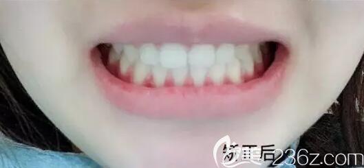 我在南宁柏乐口腔做半隐形陶瓷托槽牙齿矫正,是先看了牙友评价和收费