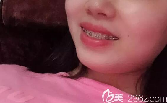 9个月的时候我对比了自己在上海永华口腔矫正龅牙前后脸型图,我觉得我的脸型变化很……